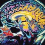 Traumatic Brain Injury Information