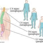 Spinal Cord Injuries and their Consequences